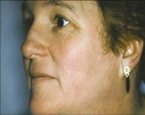 facial portrait rejuvination
